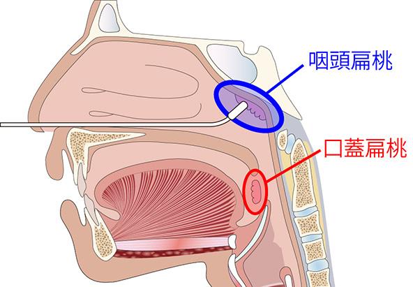 花粉症・慢性上咽頭炎について - 福田内科クリニック | 島根県 ...
